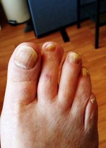 A foot with chiropody problems