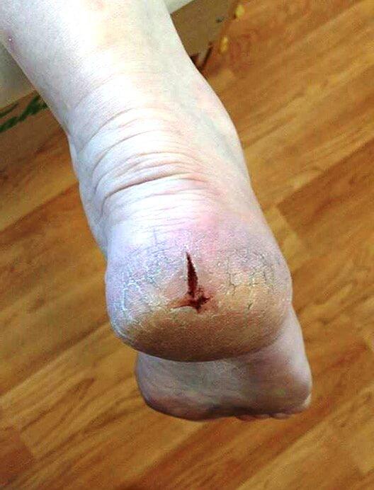 A cracked heel