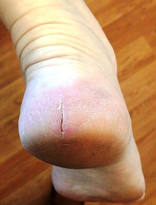 Cracked heel after treatment