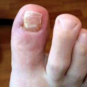 Ingrowing toe nail after treatment