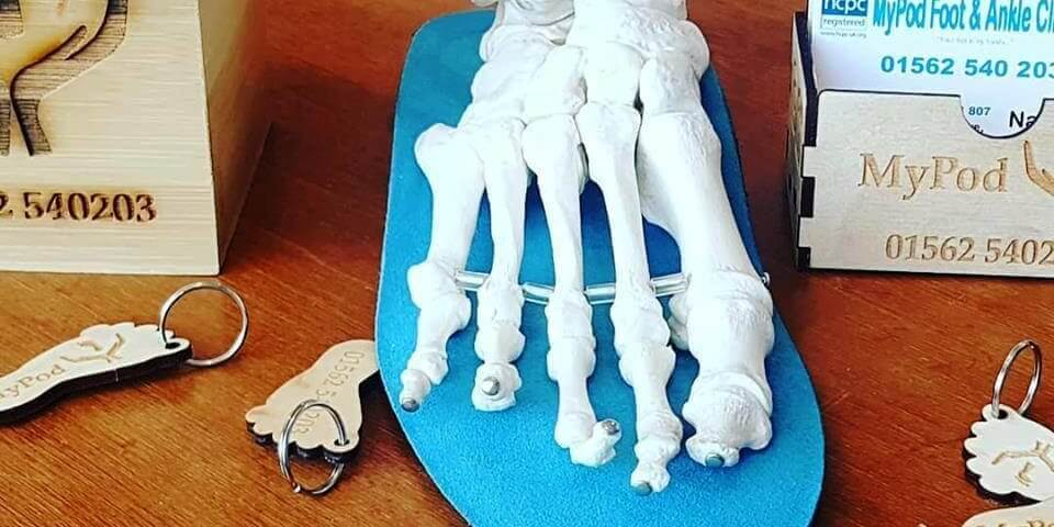 Skeletal foot at MyPod Foot Clinic, Kidderminster